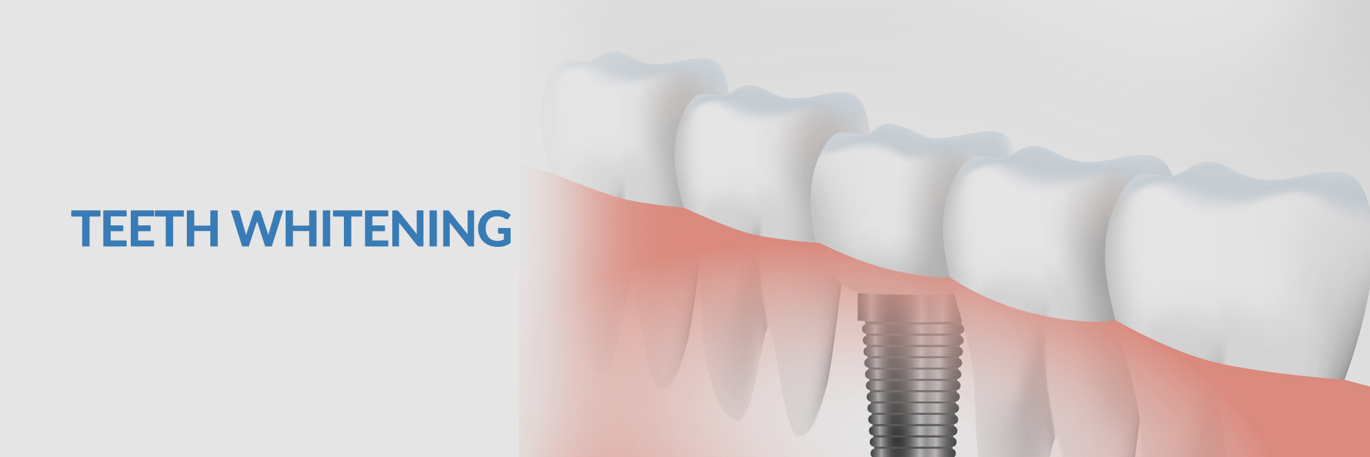 Teeth Whitening Srilanka Teeth Cleaning In Colombo